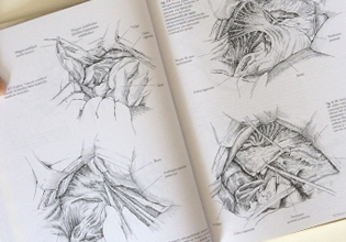 Libro Cistectomía Radical